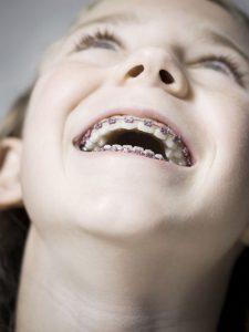orthodontist limburg echt susteren